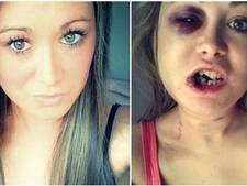 Zwaar mishandelde moeder deelt foto's op Facebook