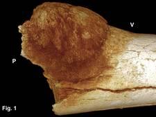 Kwaadaardige tumor in 2 miljoen jaar oud bot ontdekt