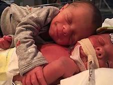 Pasgeboren baby omhelst tweelingbroertje dat stervende is