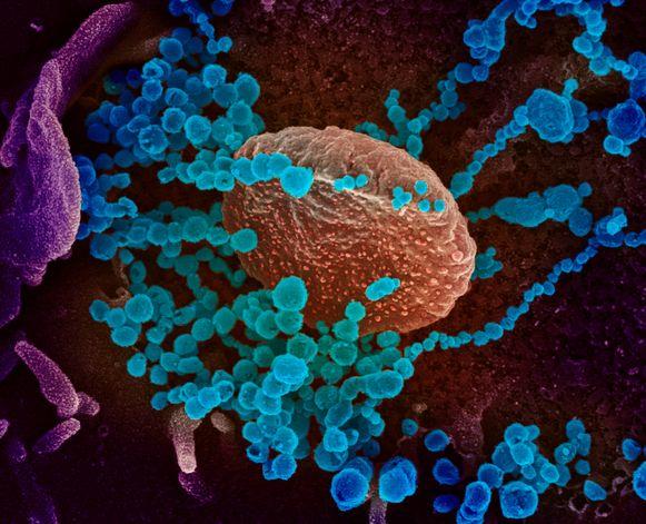 De blauwe rondjes stellen SARS-CoV-2 voor.