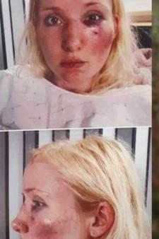 Temptation Island-deelneemster Laura werd zwaar mishandeld 'door boze kijkers'