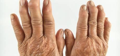 Zes dingen die je nog niet wist over reuma