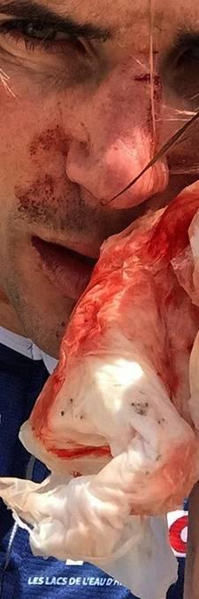 Profrenner Offredo aangevallen met honkbalknuppel