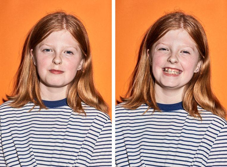 Hanne Nicolai: 'Het is leuk dat mijn gebit er mooier uit gaat zien.' Beeld Valentina Vos