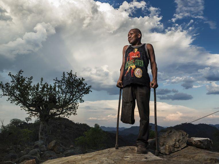 Damas Socossa (53) raakte in 1988 gewond door een landmijn in Mozambique. Beeld Getty
