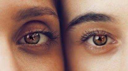 Volgens onderzoek zijn mensen met opvallende wenkbrauwen vaak narcistisch