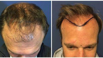 """Deze BV's ondergingen een haartransplantatie in Turkije: """"Mensen denken dat ik een jongere versie van mezelf ben"""""""