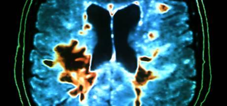 Zwolse arts start landelijk onderzoek naar omvang 'stamceltoerisme'