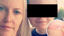 Zieke grap: kleine Mattéo (7) vastgelijmd op toiletbril in Quick