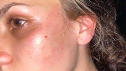 """""""Uitbater slaat meisjes"""": vandalen spuiten boodschappen op gevel café nadat zaakvoerder studente (19) klap verkoopt"""