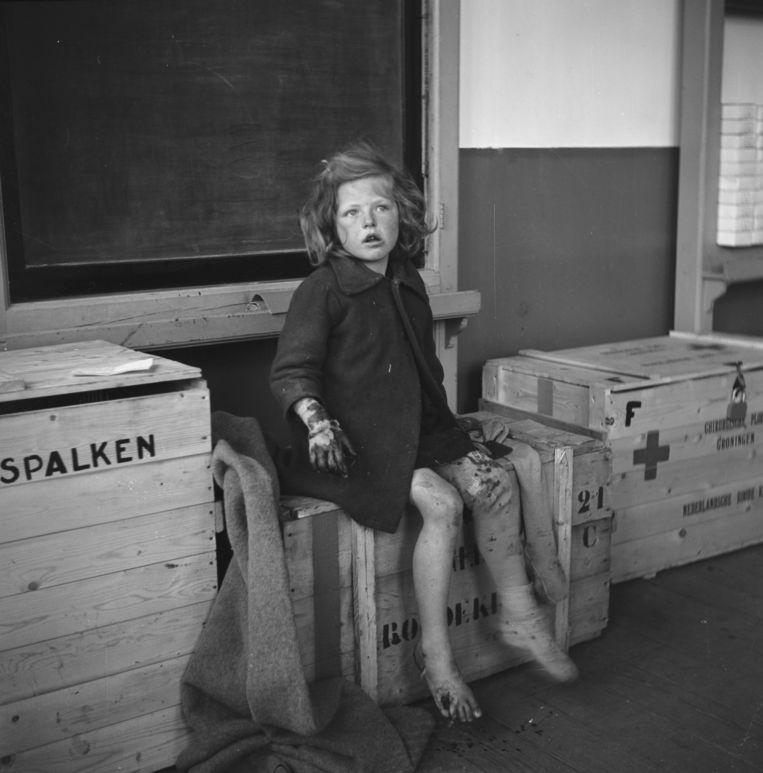 Gewond meisje in Ten Boer, Groningen, begin met 1945.  Beeld Willem van de Poll / Nationaal Archief, Fotocollectie Anefo