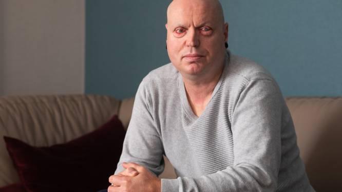"""""""Opa, wanneer kan je ons weer zien?"""": Maaseikenaar (48) blijvend blind na arbeidsongeval met zwavelzuur"""