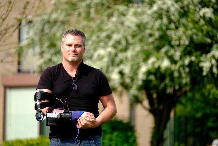 """Zes jaar na zijn zware motorongeval draagt Ron Janssens (43) nog altijd een brace. 'Roboron' noemt hij zichzelf: """"Half robot, half mens""""."""