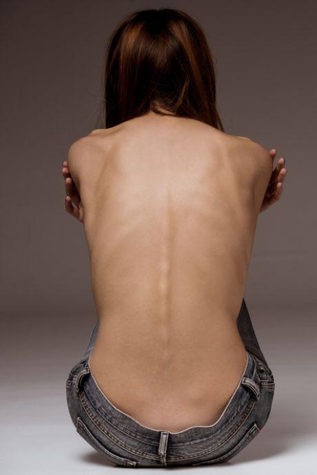 Meer mensen met eetstoornissen en ernstige kwalen bij klinieken door corona: 'Eenzaamheid breekt ze op'