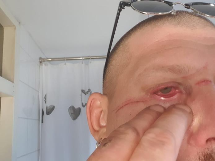 Brian Tas (41) uit Alphen raakte gewond aan zijn oog en gezicht toen hij op de scooter tegen een visdraard reed dat over de weg was gespannen