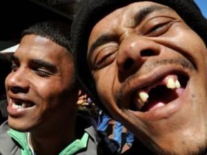 """Ils arrachent leurs dents de devant pour être """"plus séduisants"""""""