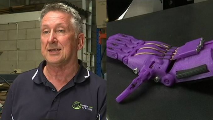 Deze ex-kapper maakt protheses van shampooflesjes