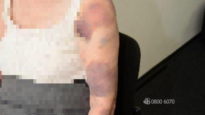 De vrouw liep bij de overval diverse kneuzingen en blauwe plekken op.