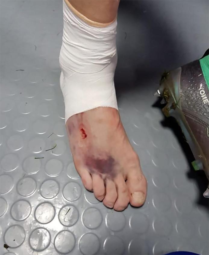 De toegetakelde voet van Ilya Kutepov.