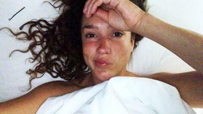 """""""Dit heb ik nog nooit meegemaakt"""": Katja Schuurman in zak en as na pijnlijke blessure tijdens opnames 'De Battle'"""