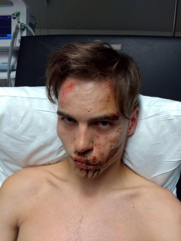 Bryan Vandecasteele (19) werd flink toegetakeld.