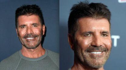 Wat is er met het gezicht van Simon Cowell gebeurd?