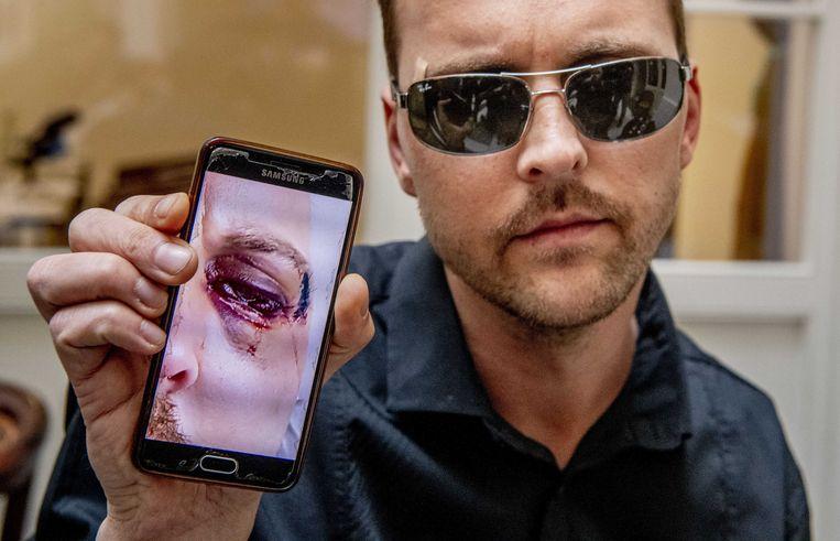 De Praagse ober Mirek van het Polpo restaurant, die is mishandeld door een groep Nederlanders, laat een foto zien van zijn verwondingen zien.
