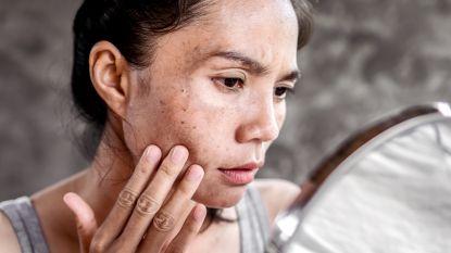 Hoe herken je een gevaarlijk vlekje op je huid? Dermatoloog over alle soorten en wat je eraan doet
