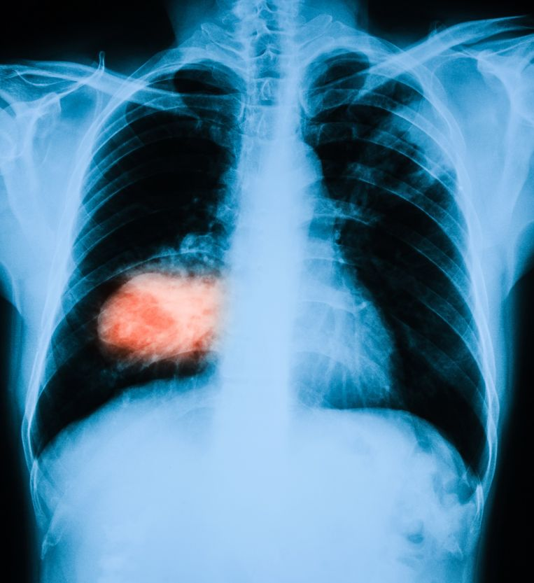 Röntgenfoto van de longen, met links in het rood een longtumor. Beeld Getty Images
