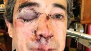 Europees functionaris tegen de grond gemept en beroofd in hartje Brussel
