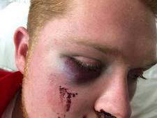 Zuidlander (25) zwaar mishandeld in Eindhoven