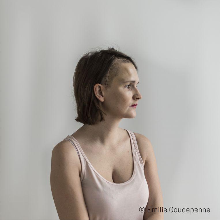 Emilie Goudepenne toont foto's van voor en na haar hersenoperatie.