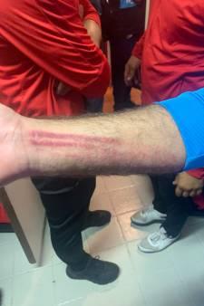 Voetbalclubs uit Den Haag en Vlaardingen gaan beide aangifte doen na knokpartij op veld