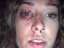 Groep bekogelt vrouw (20) in Bunschoten met fles, slachtoffer raakt zwaargewond aan gezicht