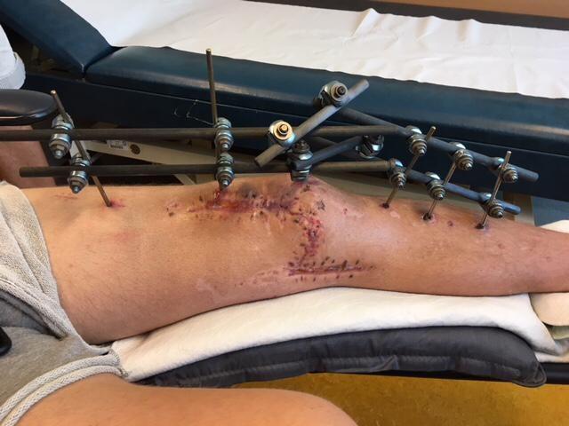 Het been van Leon de Kogel na zijn auto-ongeluk op Malta.