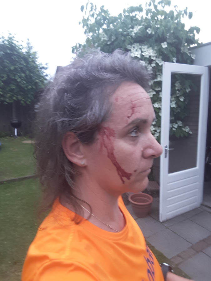 Suzanne van Vugt is aangevallen door een roofvogel in Heukelom. Hij doorboorde haar hoofd met zijn klauwen.