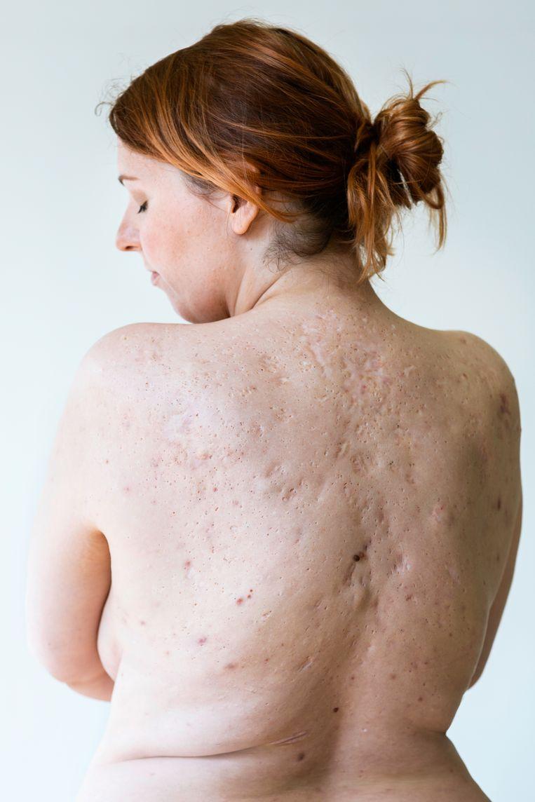 Susanne de Goeij kampt sinds haar dertiende met de huidziekte hidradenitis suppurativa. Sinds ze dit voorjaar een behandeling met bactiofaagmedicatie heeft ondergaan, is haar leven weer draaglijk. Beeld Jet van Gaal