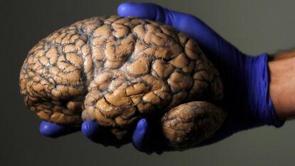 Belgische onderzoekers ontdekken waarom ons brein zo groot is