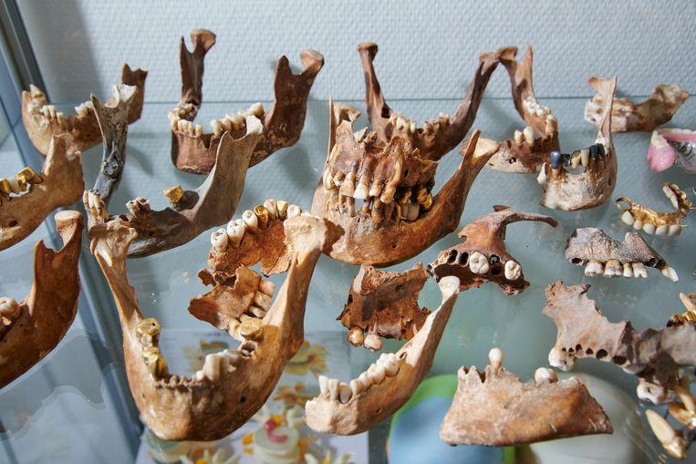 In het lab van de BIDKL worden uit de stoffelijke resten de beste bewaarplaatsen van dna geselecteerd: er wordt een stukje dijbeenbot afgezaagd of een deel van de schedel achter het oor weggehaald. Beeld Niels Stomps