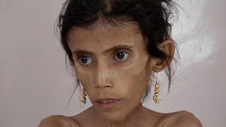Fatima (12) weegt amper 10 kilo