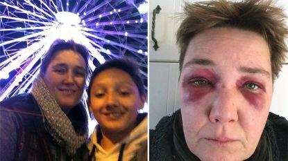 Zinloos geweld tijdens avondje uit: moeder in elkaar geslagen met zoontje erbij