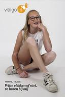 Nienke (14) uit Hardinxveld Giessendam is een van de gezichten van de jaarlijkse Wereld Vitiligodag.