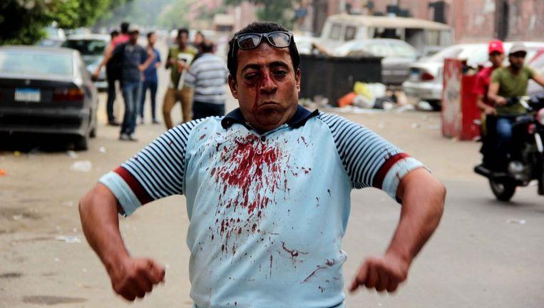 Een gewonde demonstrant na rellen bij de Caïro Universiteit. Beeld null