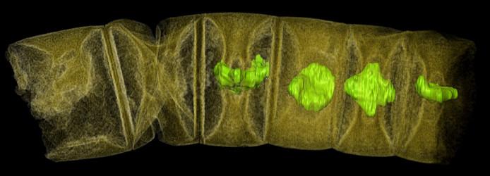 Een röntgenfoto van een draadachtige roodalg.