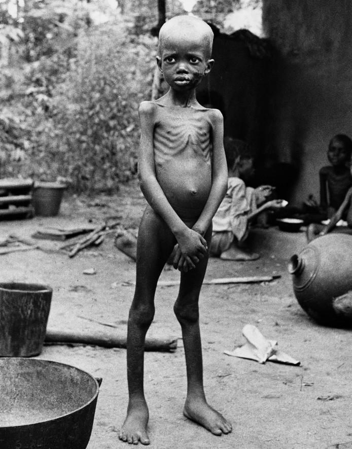Uitgehongerd Biafraans kind