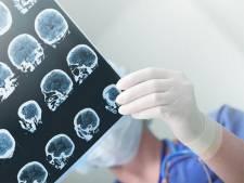 """Des problèmes cérébraux graves même pour les formes """"bénignes"""" du Covid-19?"""
