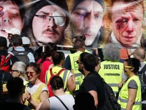 """Les """"mutilés gilets jaunes"""" marchent à Paris"""