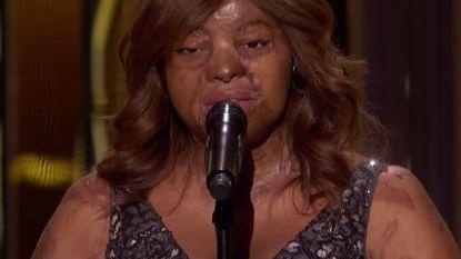 Verminkt voor het leven na vliegtuigcrash, maar niet te kloppen: verbrande vrouw krijgt Golden Buzzer in 'America's Got Talent'