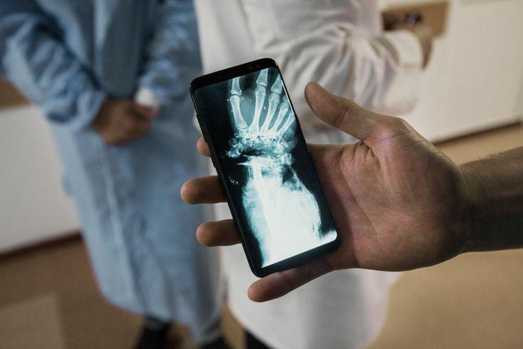 Een arts in een ziekenhuis in Dnipro laat een röntgenfoto zien van een door een granaat verwoeste hand. Beeld Emile Ducke