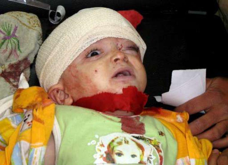Een kind liep vandaag verwondingen op bij beschietingen in Bakoeba.